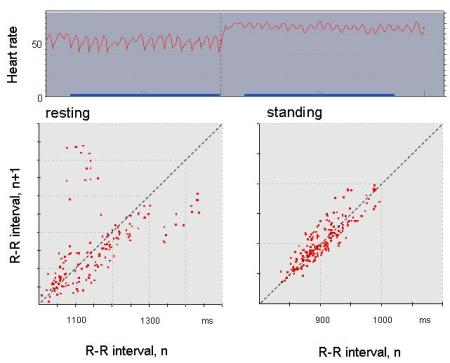 Orthostatic test on 12th September 2009. The upper figure is the trace of heart rate while resting for 3.5 minutes and after standing for a similar period.  The lower figures are Poincare plots of heart beat R-R intervals during the final three minutes of rest (left) and during a three minute period starting 30 sec after standing (right).